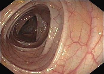 Coloscopie - Endoscopie digestive