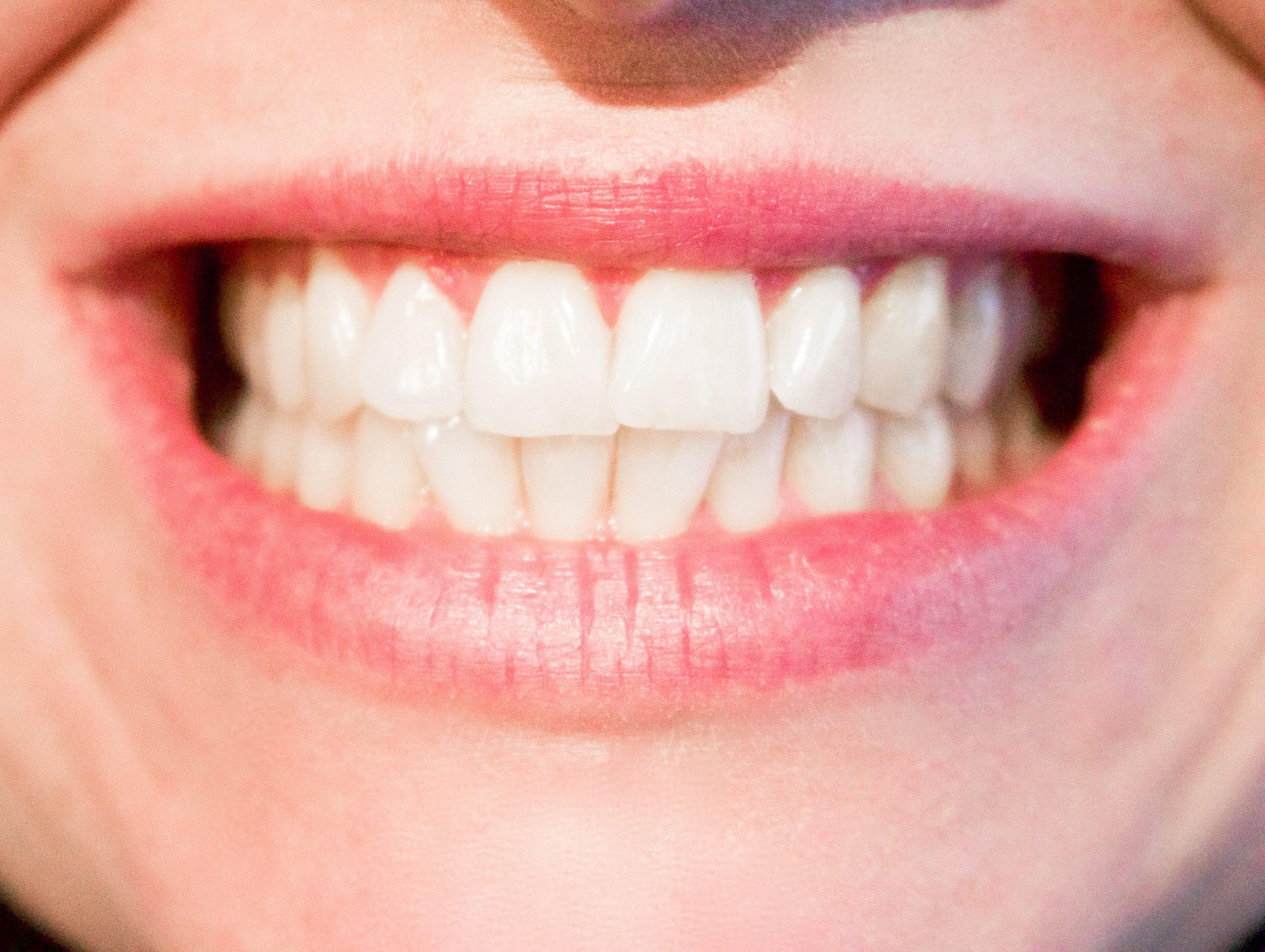 Plombage dent le soin dentaire par excellence